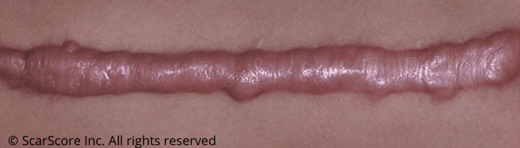 Thick, red, raised keloid scar