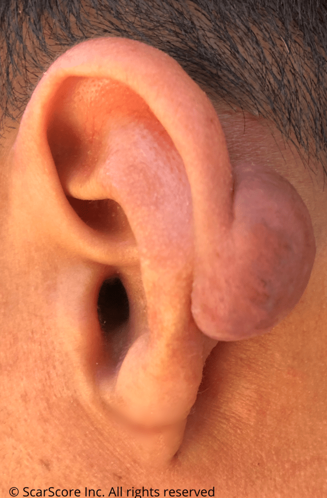 Large cartilage keloid arising from an ear piercing
