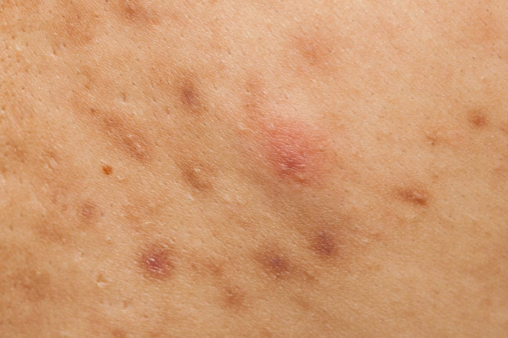 A patch of hyper-pigmented, dark scars on the skin